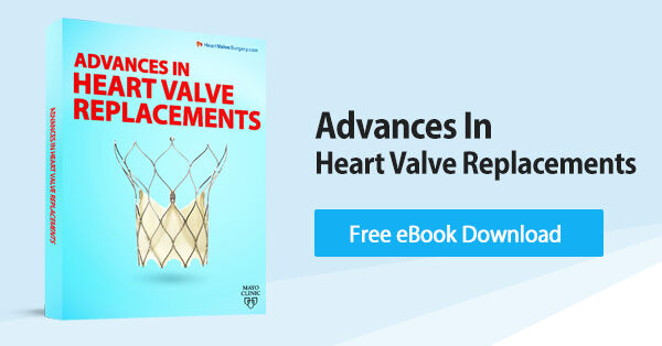 Advances in Heart Valve Replacements eBook Download