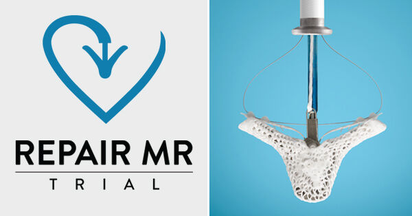 REPAIR MR MitraClip Clinical Trial