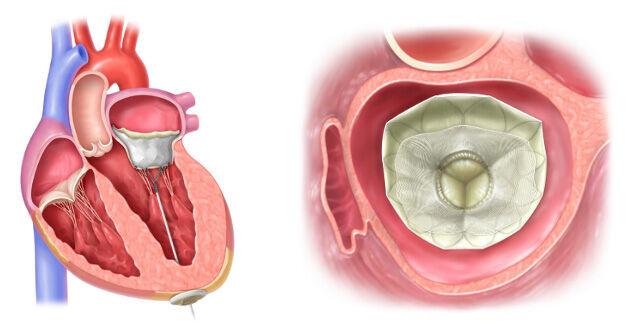 Implanted Tendyne TMVR