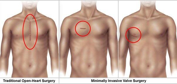 Minimally-Invasive Heart Valve Surgery