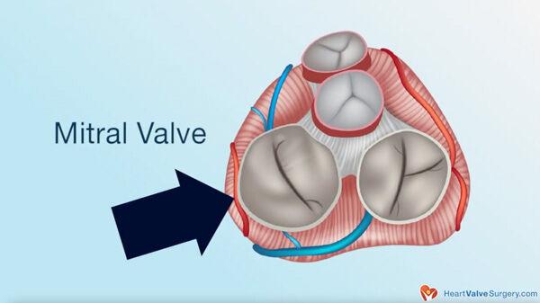 Leaking Mitral Valve Due to Atrial Fibrillation