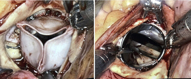 Robot Implanted Aortic Valve Replacement - Tissue & Mechanical